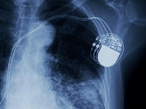 stock-photo-x-ray-image-of-permanent-pacemaker-implant-in-chest-body-process-in-blue-tone-597966017